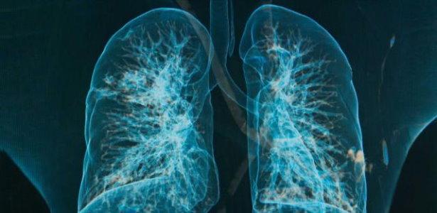 Die Symptome einer Bronchitis