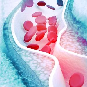 Die ganze Wahrheit über Cholesterin
