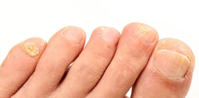 Fuß mit Nagelpilzbefall
